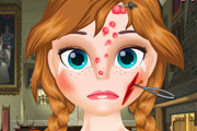 game Anna Face Problems