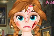 game Frozen Anna Face Problem